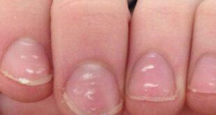 همهچیز در مورد لکههای سفید روی ناخن ، علت، درمان و راههای پیشگیری آن